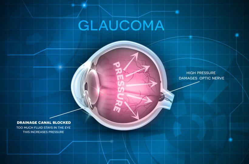 Glaukom - schematische Darstellung